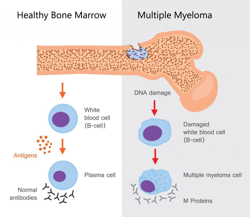 Myeloma 3-1-5 Health club